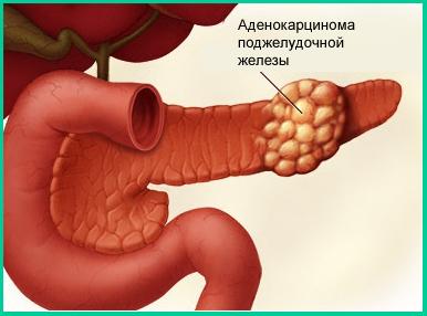 Рак поджелудочной железы с метастазами