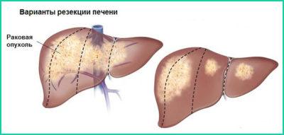 Лечение рака печени 4 стадии с метастазами
