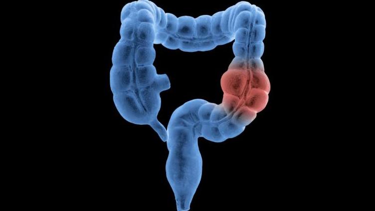 Лучевая терапия после рака прямой кишки