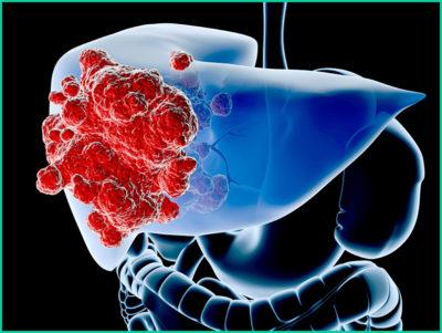 Рак печени 4 стадии с метастазами