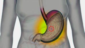 Развитие язвы желудка, симптомы и причины