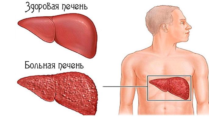 Хронические заболевания печени классификация