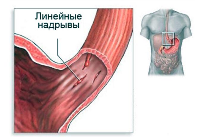 Желудок рефлюкс эзофагит