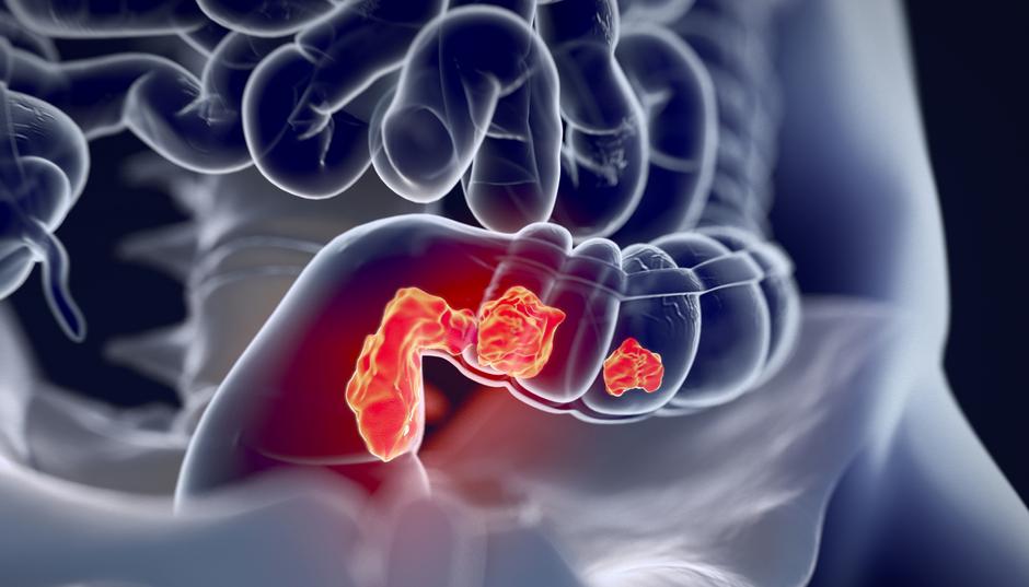 Опухоль прямой кишки метастазы