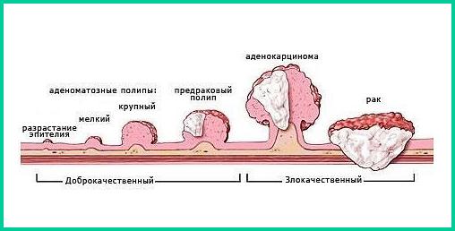 Полипы и рак