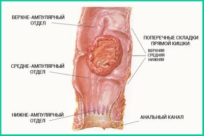 Нейроэндокринная опухоль прямой кишки
