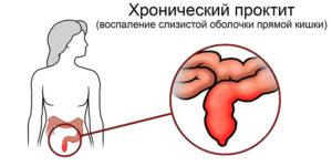 Симптомы хронического проктита, лечение