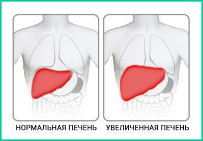 Цирроз печени опухоль