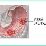 Проявления язвы желудка, признаки, профилактика
