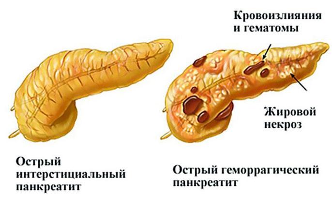 Псевдотуморозный панкреатит головки поджелудочной железы