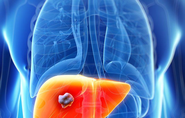 Рак печени 4 стадия сколько живут
