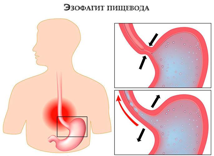 Рефлюкс эзофагит пищевода