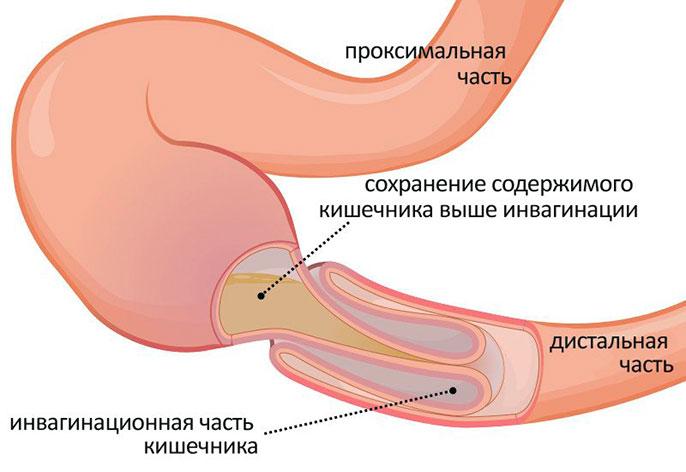 Симптомы частичной непроходимости кишечника у взрослых