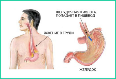 Симптомы эрозии пищевода желудка