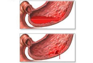 Причины язвенного кровотечения, лечение