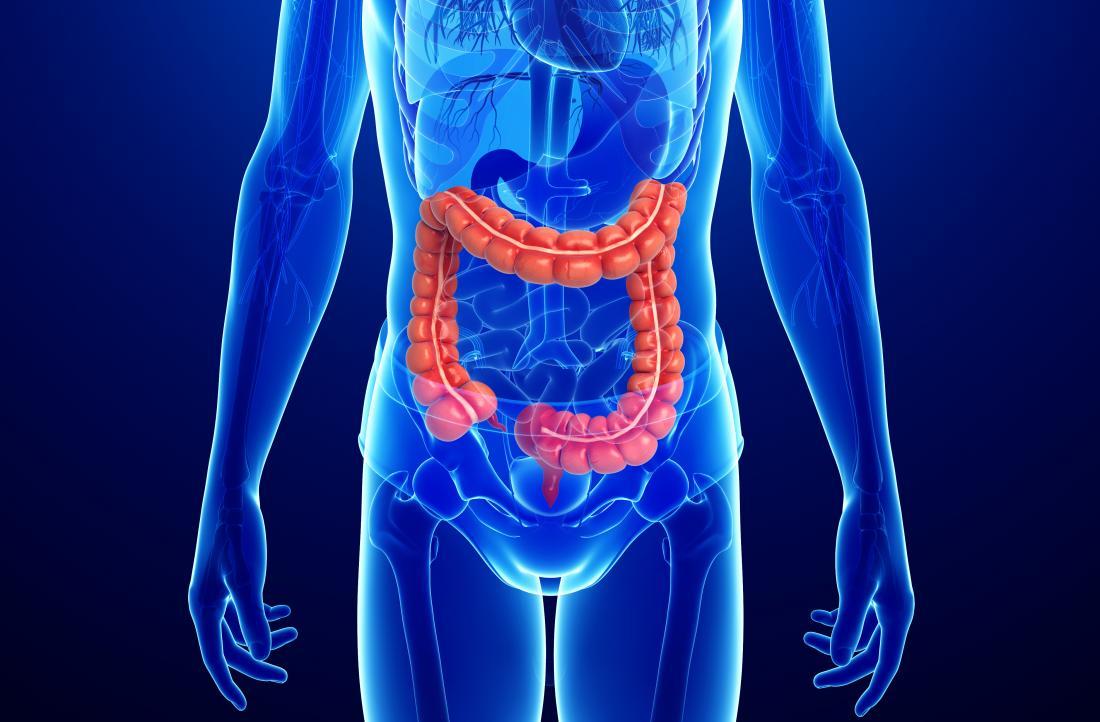 Симптомы опухоли прямой кишки у женщин