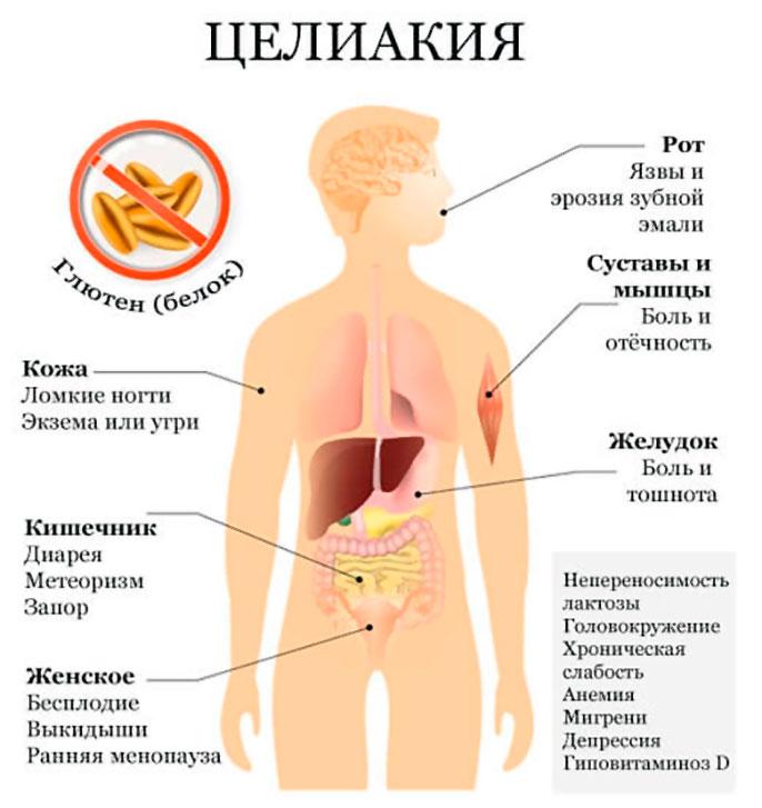 Симптомы целиакии у взрослых и диагностика