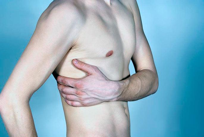 Цирроз печени симптомы сколько живут
