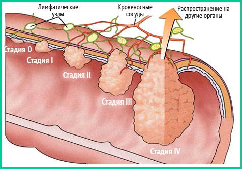 Опухоль прямой кишки 1-2-3-4 стадия