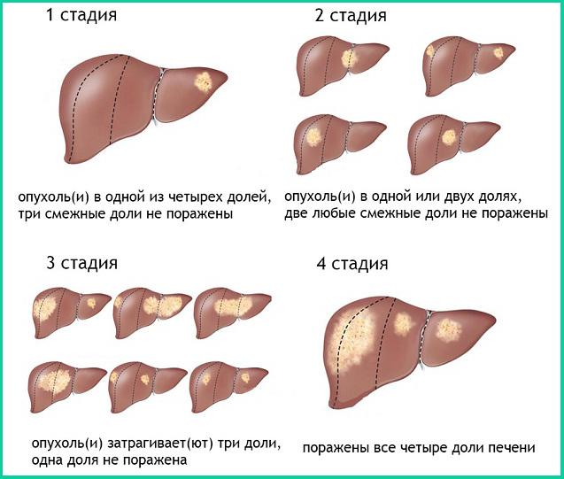 Рак печени 4 стадия