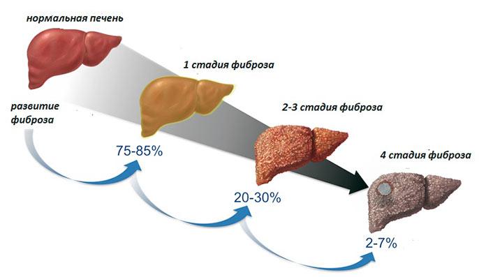 Стадии цирроза печени у мужчин и женщин