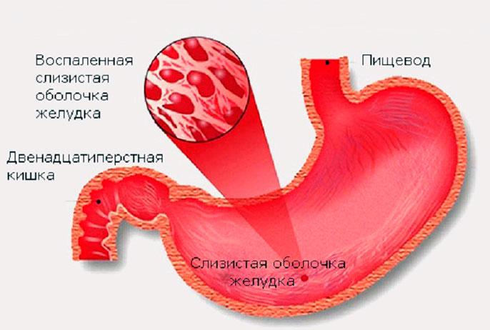 Хронический активный поверхностный гастрит