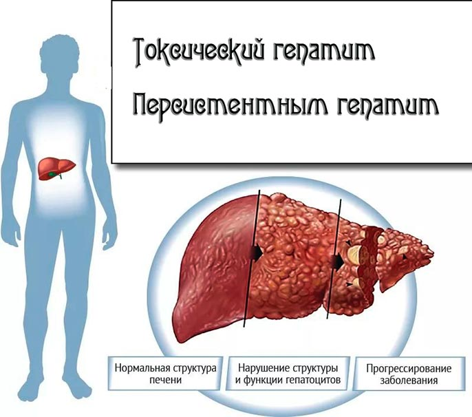 Токсический гепатит симптомы