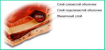 Лечение язвы двенадцатиперстной кишки лекарствами