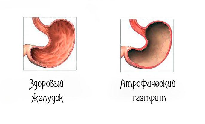 Причины, симптомы, лечение атрофического гастрита