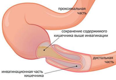 Непроходимость кишечника — это состояние, при котором нарушается продвижение содержимого кишечника по желудочно-кишечному тракту, частичная или полная блокада тонкого