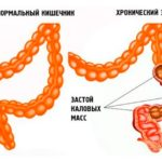 Причины и лечение хронического запора