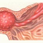 Доброкачественная и злокачественная опухоль желудка