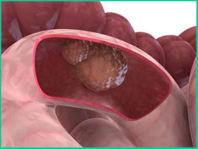 Опухоль прямой кишки: злокачественная и доброкачественная