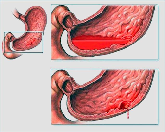 Проявление язвы желудка у взрослых