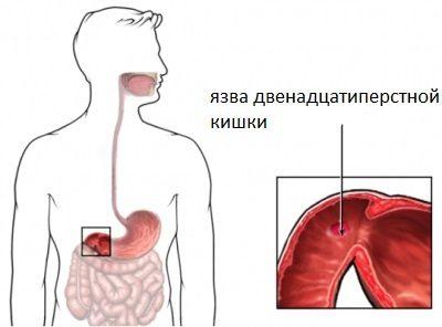 Симптомы и лечение обострения язвы двенадцатиперстной кишки