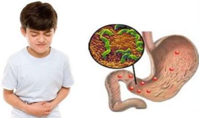 Гастродуоденит методы лечение диета