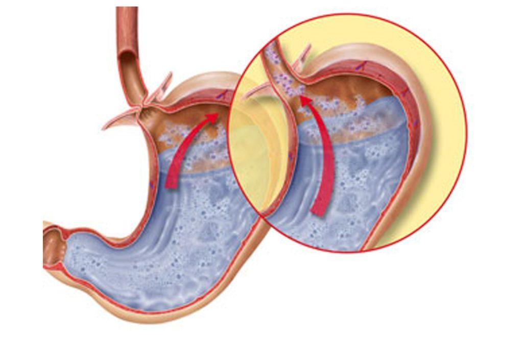 Что такое недостаточность кардии желудка, профилактика и лечение