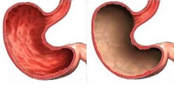 Атрофия слизистой оболочки желудка, диагностика и лечение