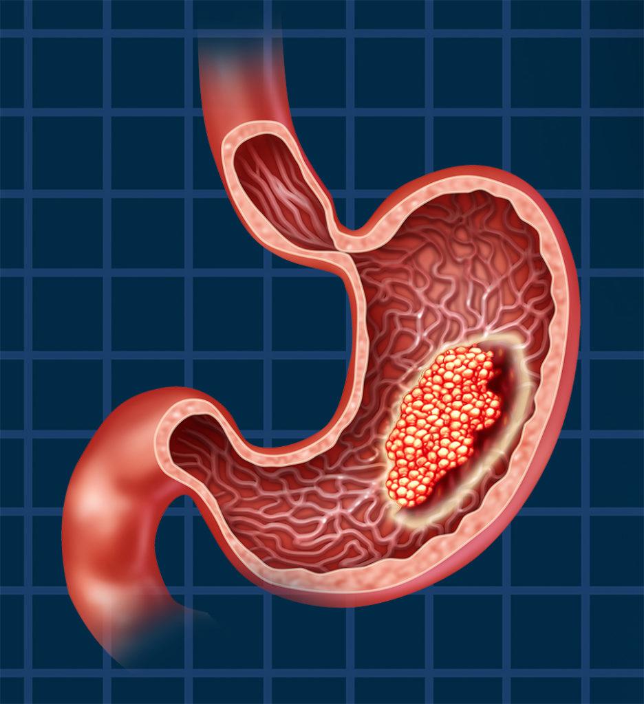 Симптомы лимфомы желудка, лечение