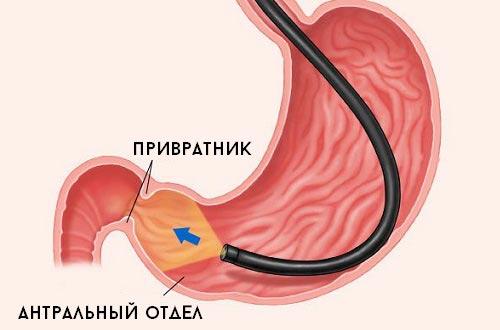 Где находится антральный отдел желудка