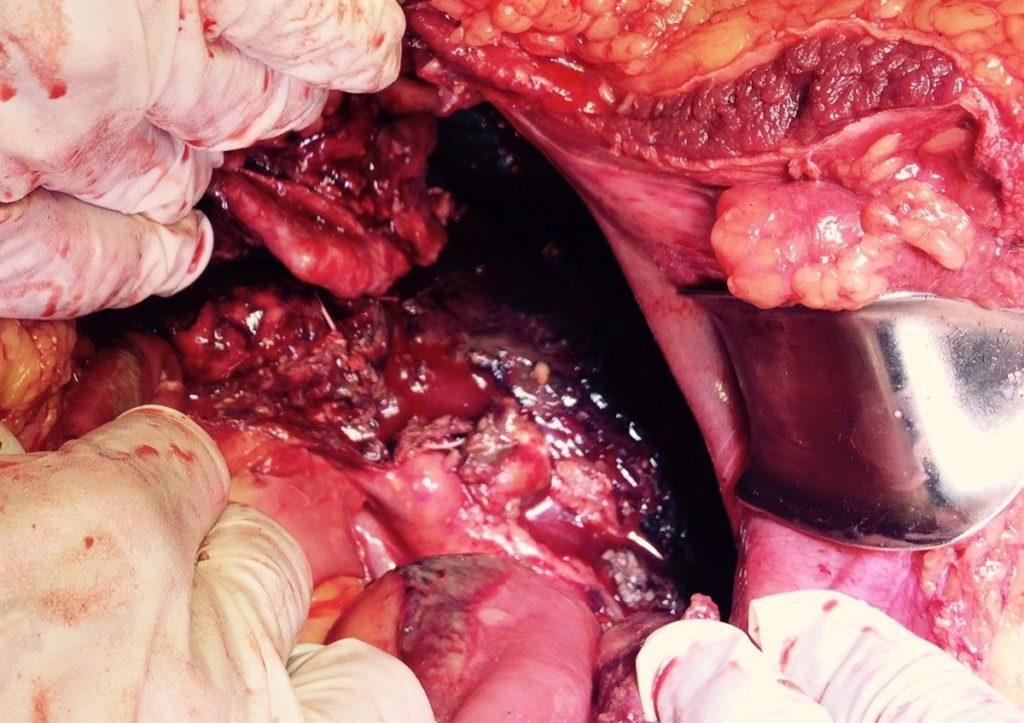 Симптомы и лечение панкреонекроза поджелудочной