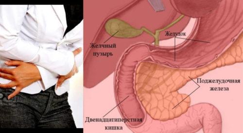 Как болит поджелудочная железа? Симптомы у женщин и мужчин