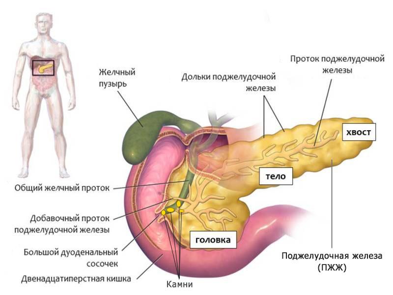 Лечение обострения хронического панкреатита, препараты