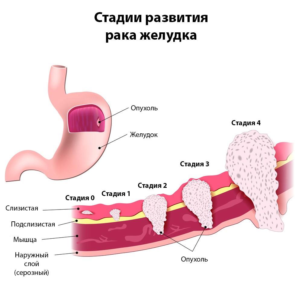 Рак желудка: признаки и симптомы, лечение