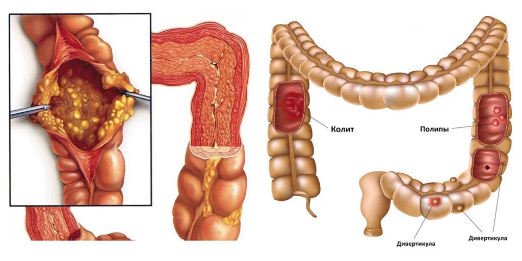Виды колита кишечника у взрослых и детей, лечение