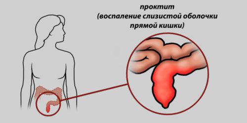 Симптомы и лечение проктита