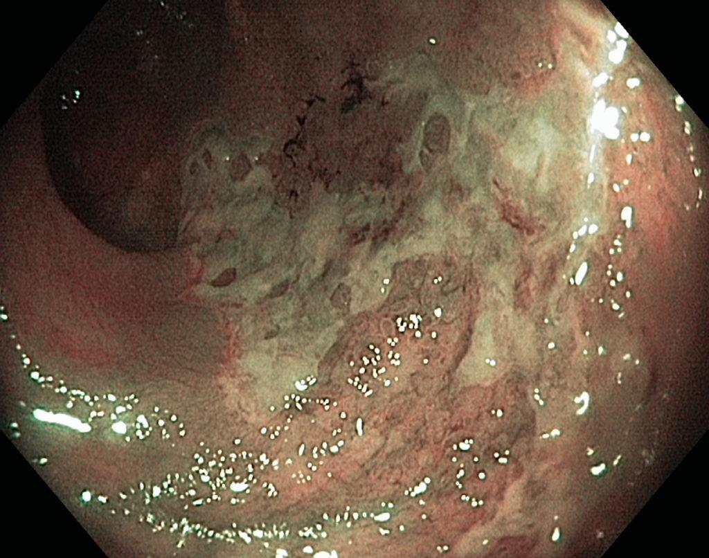 Слизистая желудка гиперемирована - что это значит?