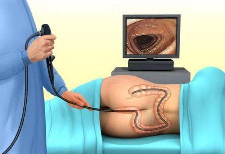 Методы диагностики в гастроэнтерологии