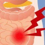 Как избавиться от газов в кишечнике и желудке