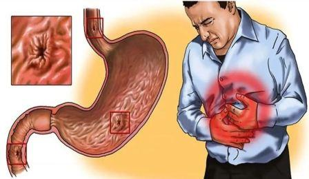 Методы исследования желудка, способы диагностики